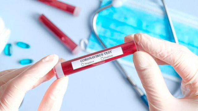 koronavirus1.jpg